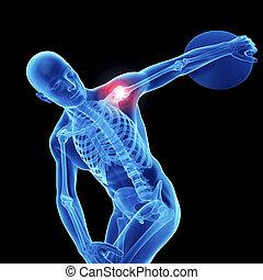 épaule, athlètes, douloureux
