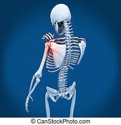 épaule, douleur, squelette