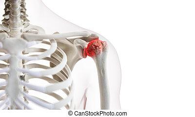 épaule, jointure, arthritique