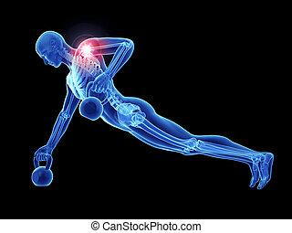 épaule, jointure, athlètes, douloureux