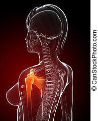épaule, jointure, douloureux
