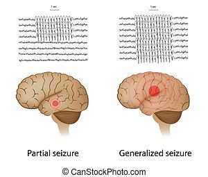 épilepsie, partiel, generalized