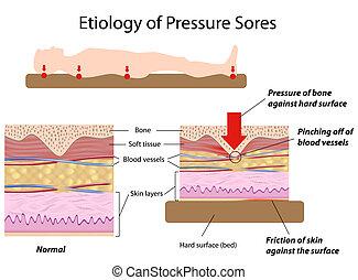 étiologie, pression, sores, eps8