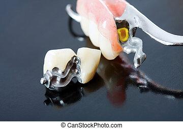 être, enlevé, series., disparu, remplace, -, il, prothèse, partie, par, systèmes, pacient, dents, scheletal, serrer, spécial, boîte