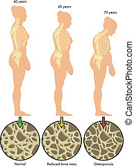 3, ostéoporose