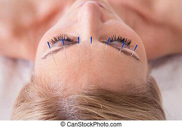 aiguille, acupuncture, réception, femme, thérapie