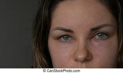 allergique, girl, fin, réaction, angioedema, gonflement, haut, jeune, figure, yeux, nez, edema., vue., quincke's, yeux, woman.