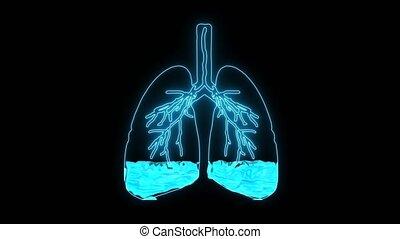 alveoli., dû, difficulté, causé, pulmonaire, anormal, manque, respiration, souffle, oedème, oxygène, fluide, condition, malades, résulter, ou