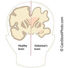 alzheimer, cerveau, maladie, eps8