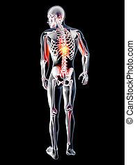 anatomie, douleur dorsale, -