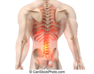 anatomie, -, mâle, douleur, dos