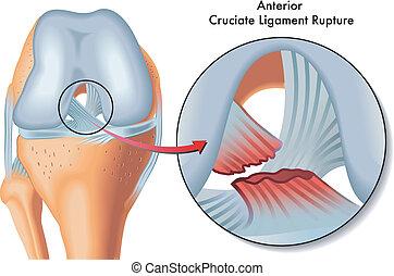 antérieur, cruciate, rupture, ligament
