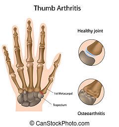 arthrite, base, pouce, eps8