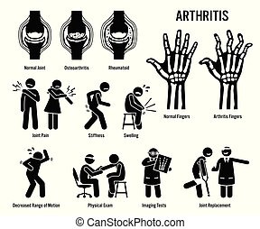 arthrite, douleur, maladie, icons., jointure
