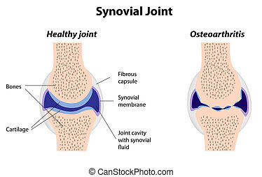 arthrite, jointure, synovial, normal
