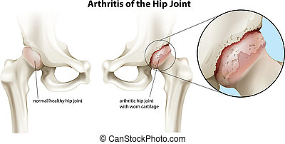 articulation coxo-fémorale, arthrite