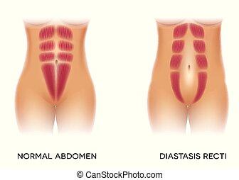 aussi, séparation, connu, diastasis, recti, abdominal
