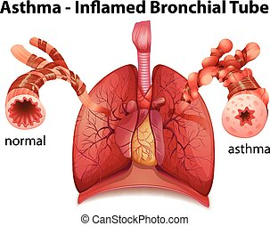 bronchique, asthme