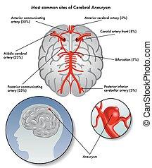 cérébral, anévrisme