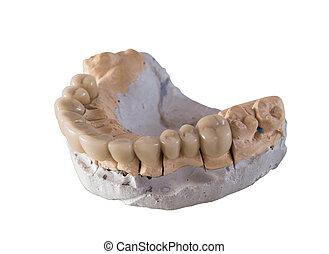 céramique, dentaire, isolé, pont