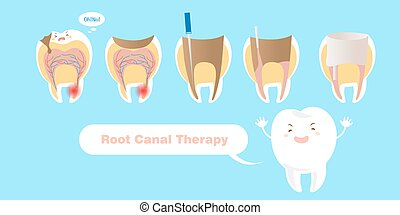 canal, thérapie, racine, dent