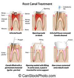 canal, traitement, racine, eps8