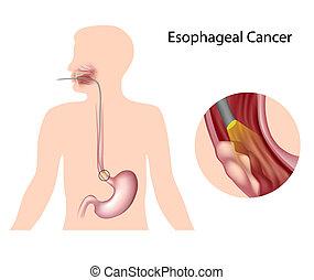 cancer, oesophagien, eps10