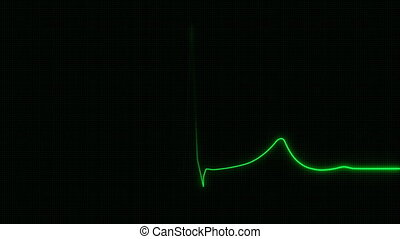 cardiogramme, 4