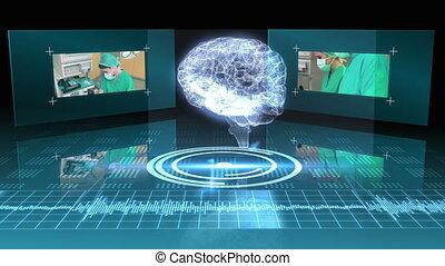 cerveau, graphique, tournant