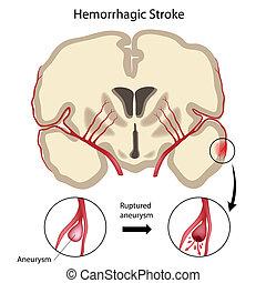 cerveau, hemorrhagic, eps10, coup