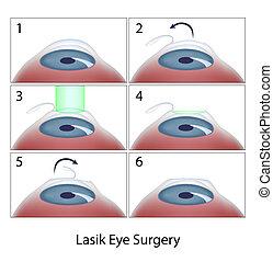 chirurgie lasik, procédure, oeil, eps10