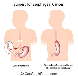 chirurgie, oesophagien, cancer
