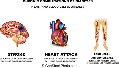 chronique, complications, diabète