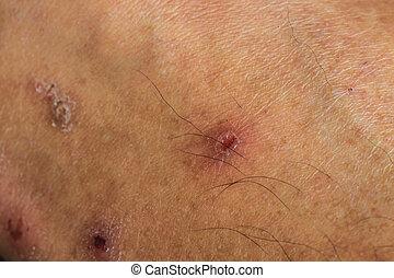 cicatrice, peau humaine