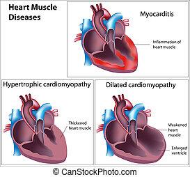 coeur, muscle, maladies, eps8