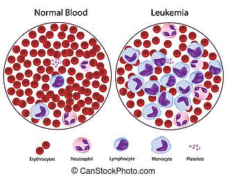 contre, leukemic, sanguine, normal