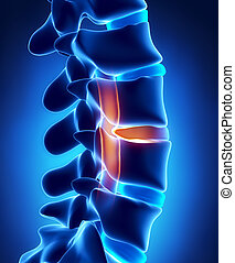corde, pression, disque, herniated, spinal