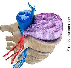 corde, spinal, sous, disque bombant, pression
