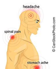 corps, points, douleur, humain