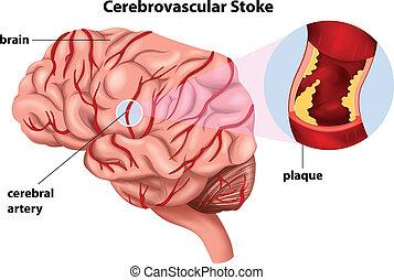 coup, cerebrovascular