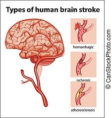 coup, types, cerveau humain