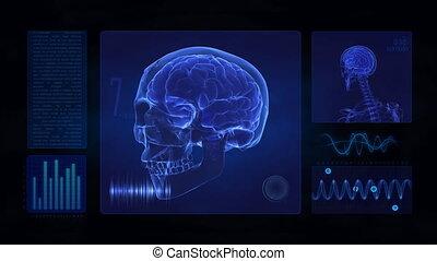 crâne, cerveau, exposer, monde médical