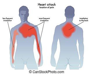 crise cardiaque, douleur, emplacement