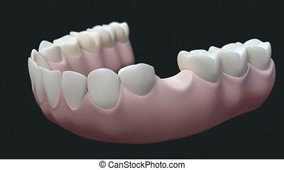 dark., dents, pont