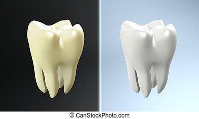 dent, contraste
