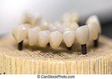 dentaire, céramique, pont