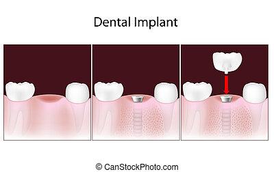 dentaire, procédure, eps10, implant