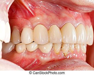 dentaire, prosthetics