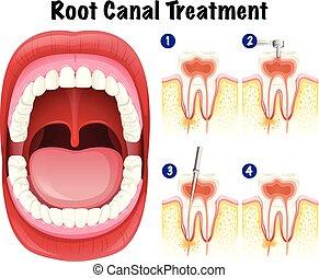 dentaire, vecteur, canal, racine, traitement