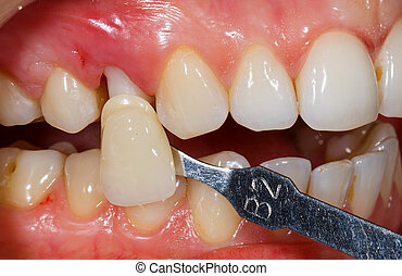 dents, ombre, détermination